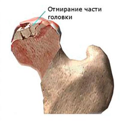 a csípőízület 1 fokos artrózisa