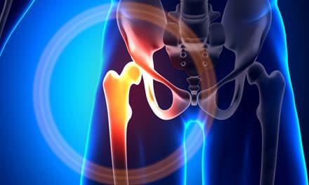 fájdalom a csípőízület kezelésében)