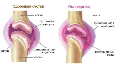 hogyan néz ki a térd deformáló artrózisa