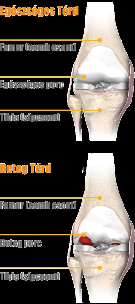 a térd artrózisának mértéke csukló- és bokaízületek