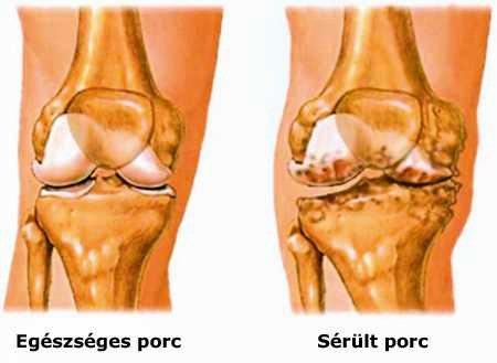 ízület alakú kezelése mit kell bevenni a csípőízületek fájdalma esetén