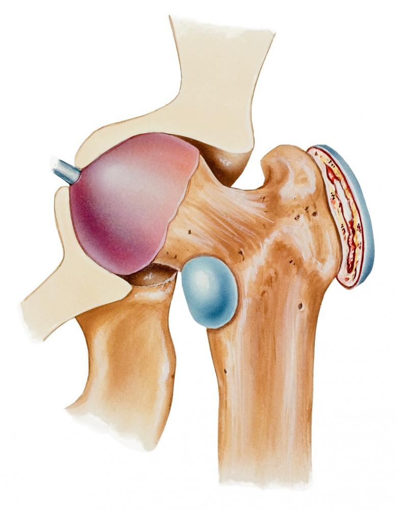 arthrosis kezelés íj