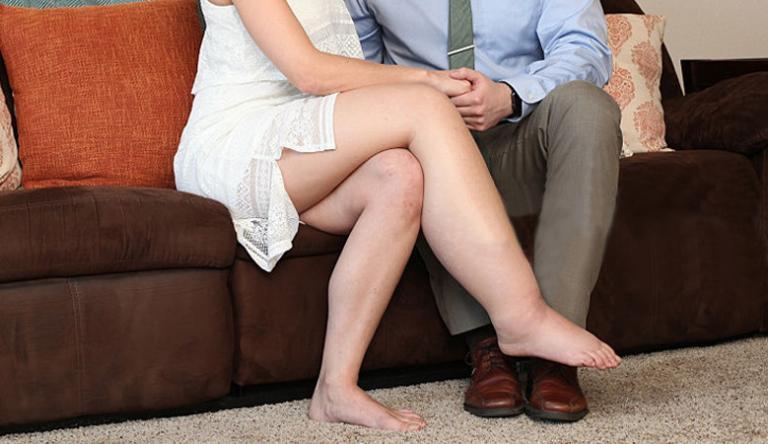 a duzzadt lábak természetes kezelése