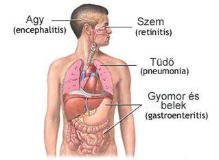 Citomegalovírus fertőzés és ízületi fájdalom - Vírusos Hepatitisz - Budai Egészségközpont