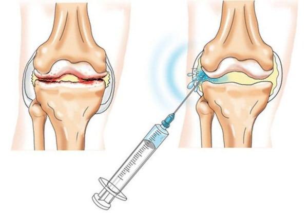 milyen tablettát kell inni térdízület artrózisával