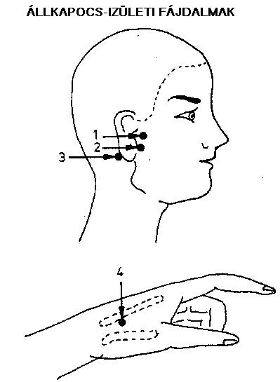 OTSZ Online - Az akupunktúra nem enyhíti a krónikus térdízületi fájdalmat