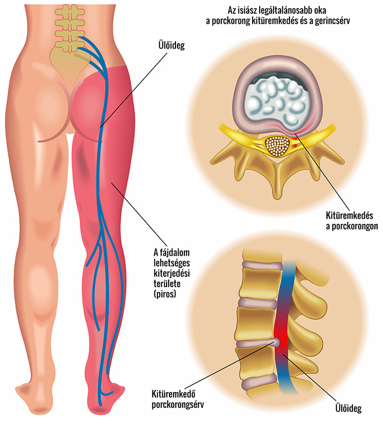 Az oszteoartrózis és tünetei