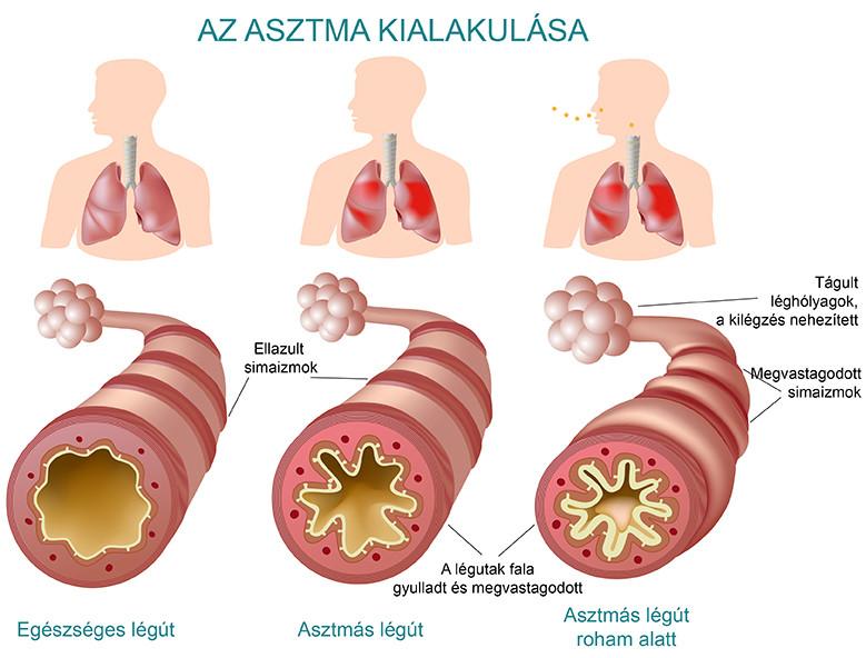 artrózis és tengeri sókezelés)
