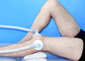 térd disztrofikus ízületi gyulladása
