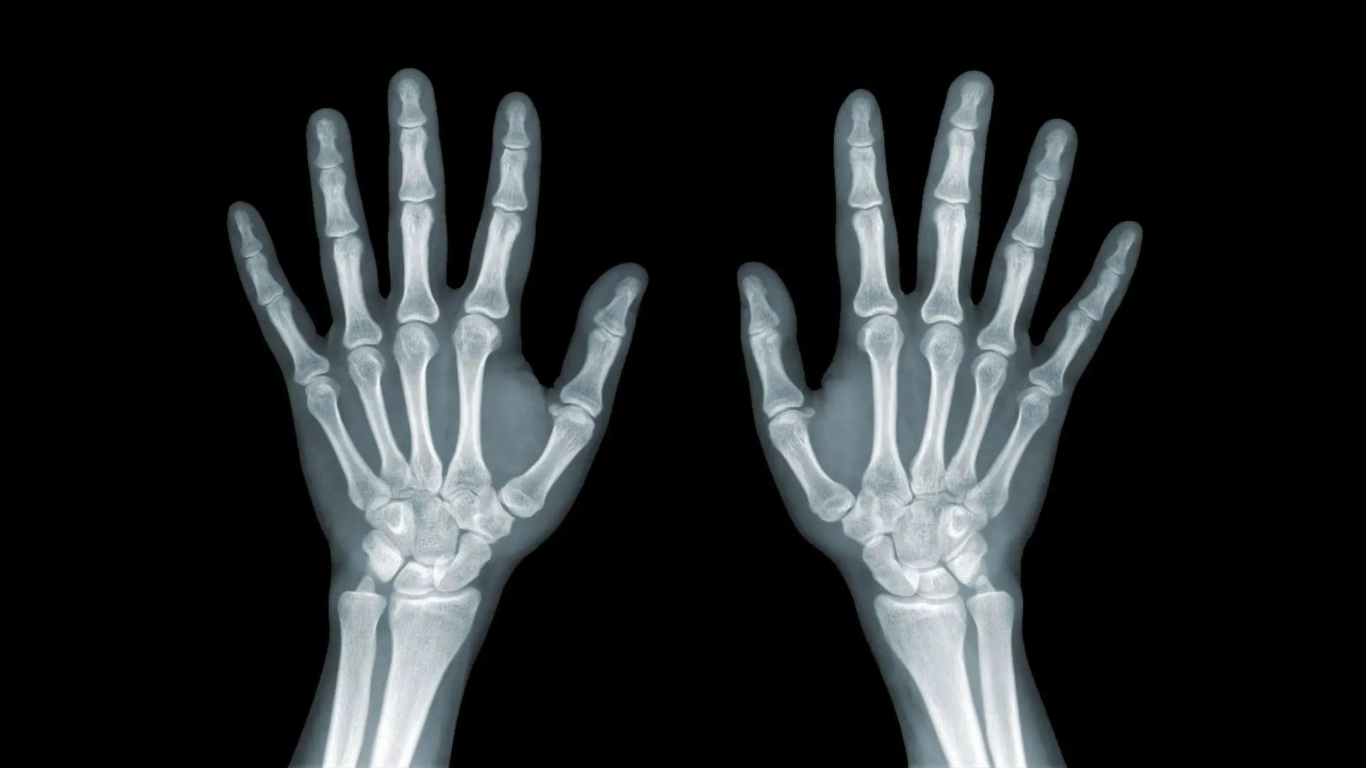 a csukló és a csukló károsodása 3. fokozatú osteoporosis kezelés