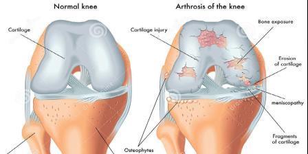 duzzanat a lábakon az ízületek közelében primobolan közös kezelésre