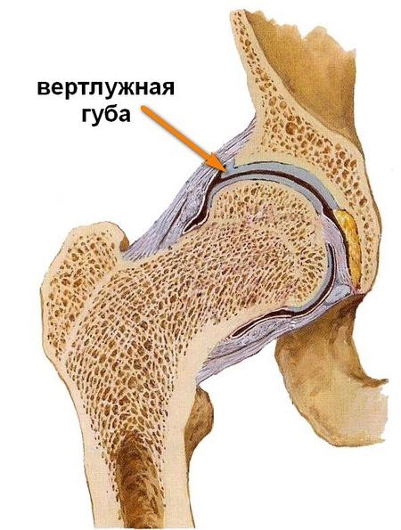 sarok a csípőízület osteoarthritisében