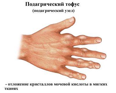fájdalom a bal kéz hüvelykujjának ízületében