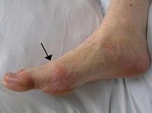ízületi fájdalom rejtett fertőzésekkel