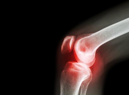 csípőízület artrózisa fotó)