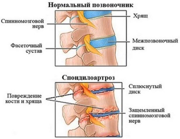 készülékek lézeres kezelés artrózis