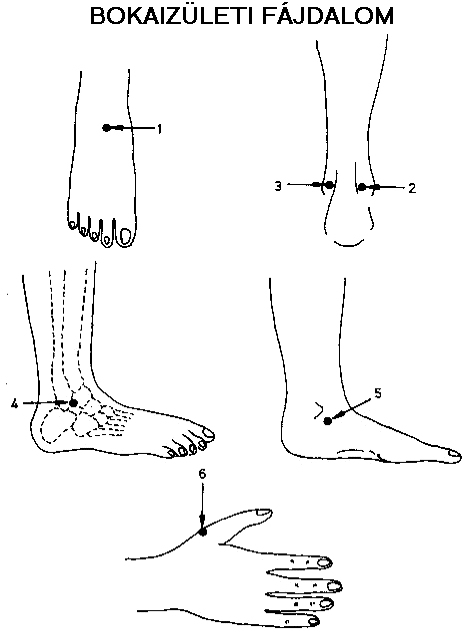 akupunktúra a térdízületek fájdalma miatt