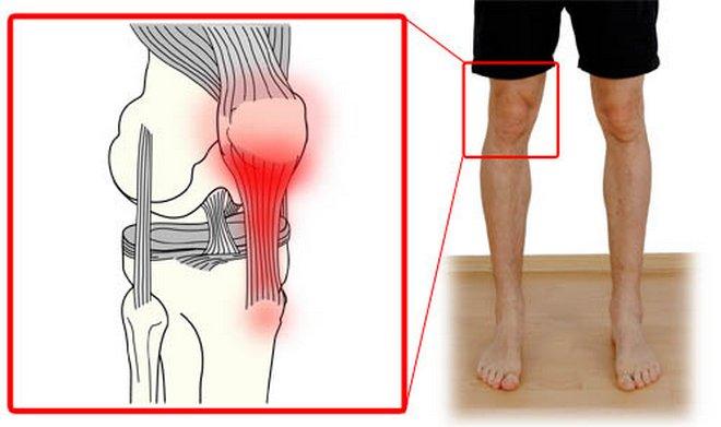 térdízületi betegség sportolókban