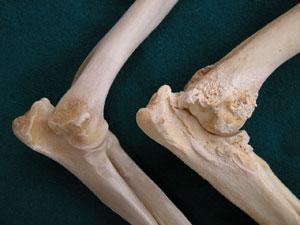 könyökízület fáj vállízület kezelése sérülés után