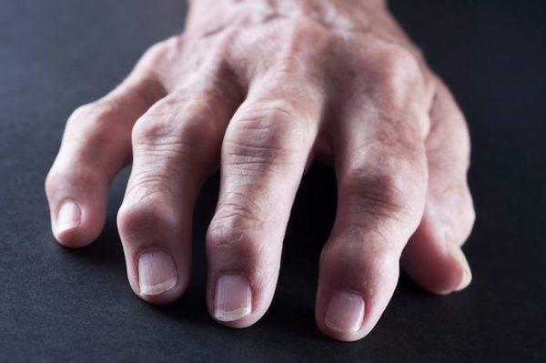 a jobb kéz ízületének duzzadása