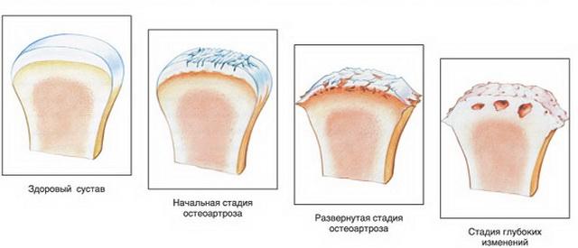 kenőcsök ízületek teraflex csípőizületi fájdalom okai