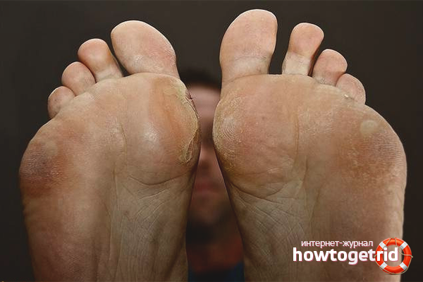 kukorica a lábujjgyulladáson)