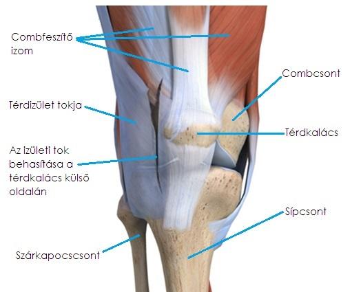 milyen gyógymódok vannak a térd artrózisához