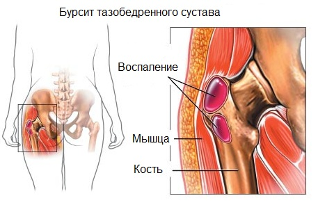 hogyan kezeljük a csípőízület deformáló osteoarthrosisát