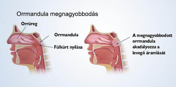 10 napos csípőműtét után fájdalom)