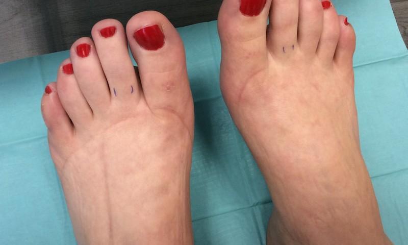 a bal láb együttes kezelése)