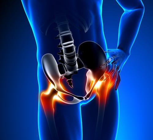 csípőízületek dysplasztikus artrózisa gerincvelő derékfájás