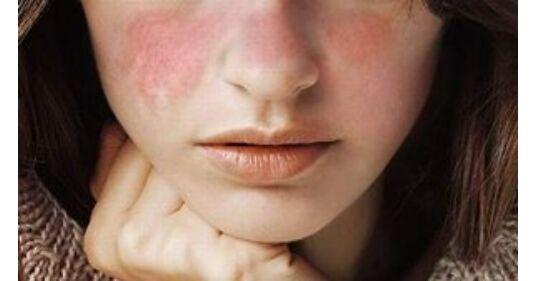 szisztémás kötőszöveti betegség sle a csípőízületek izmai fájnak