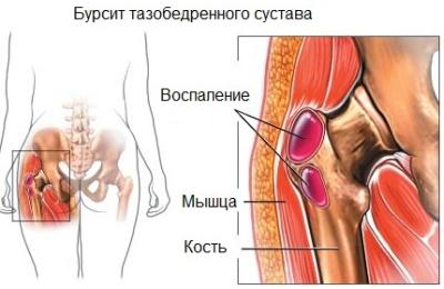 fájdalom a csípőízületekben mi ez)