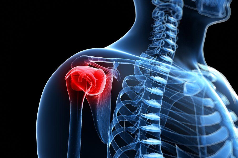 fájdalom a vállízületekben és a csontokban