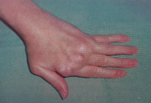 ízületek phalanx ujjak fájdalma