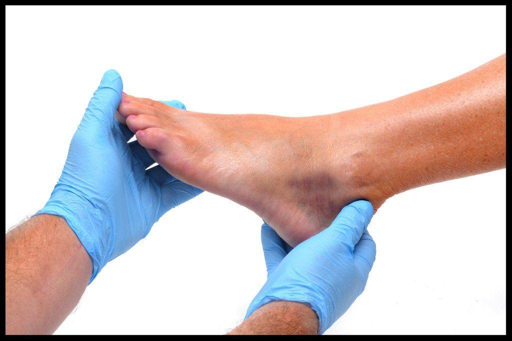 a bokaízület szinovitisa sérülés után)