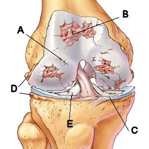 térdízület kezelésének thrombophlebitis csípőfájdalom kezelés diagnosztizálása