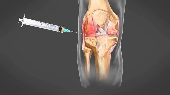 a térd artrózisának kezelése vízzel
