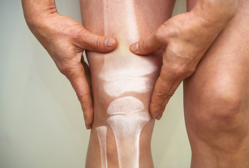 mit lehet venni ízületi fájdalmak esetén hogyan kell kezelni a kar könyökízületét