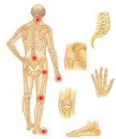 ízületi fájdalom és ápolás)