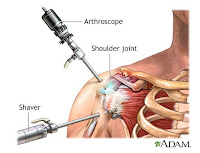 arthroso vállízület az ízület duzzadt, és fáj, hogy mit kell tenni