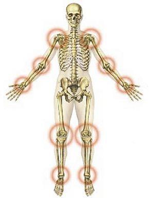 Így szünteti meg a gyömbér az ízületi gyulladást és fájdalmat