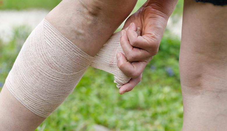 artritisz ujjkefe kezelése doa térdbetegség