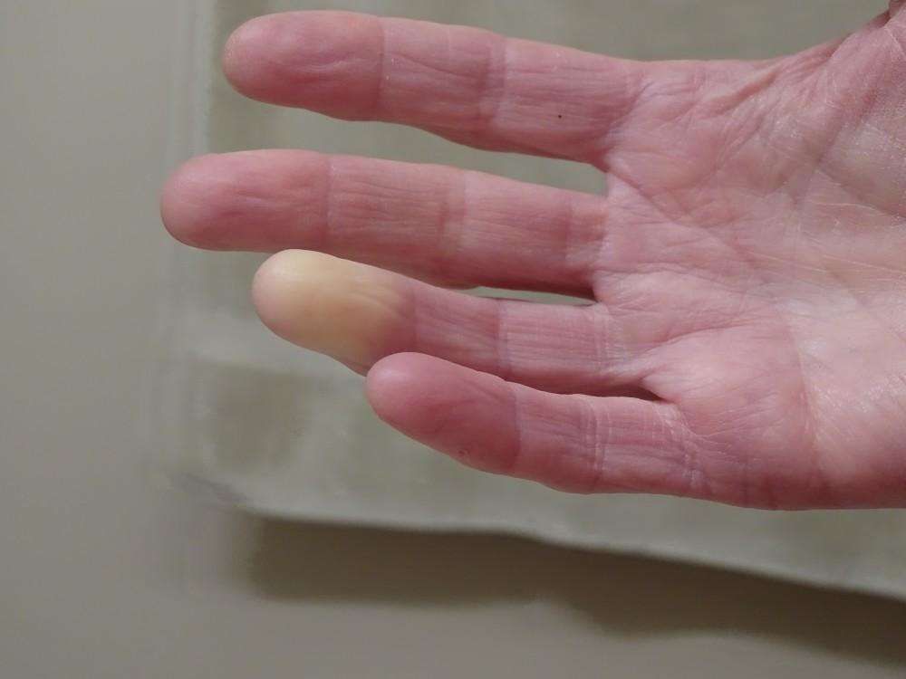 az ujjak ízületei fájnak mi ez