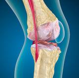 térdizületi kopás tünetei