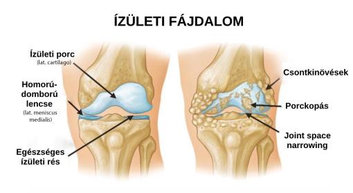 fájdalmas lábak és karok ízületei