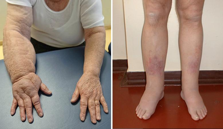 térdfájdalom láb duzzadt a térd hatékony kezelése