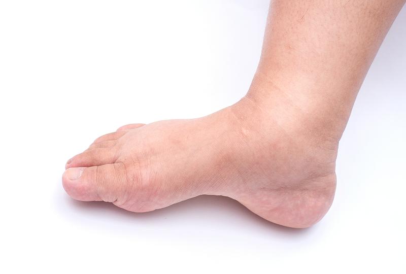 a duzzadt lábak természetes kezelése)