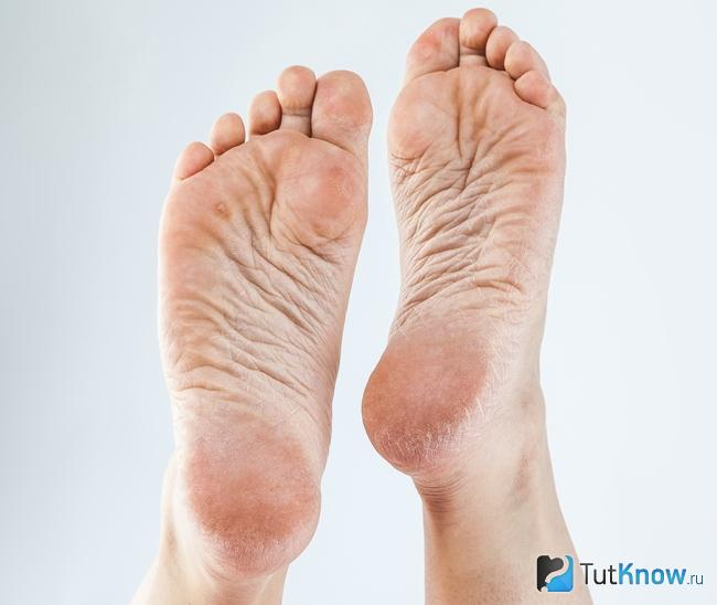 kukorica a lábujjgyulladáson