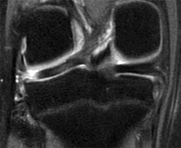 a térd medialis meniscusának repedése